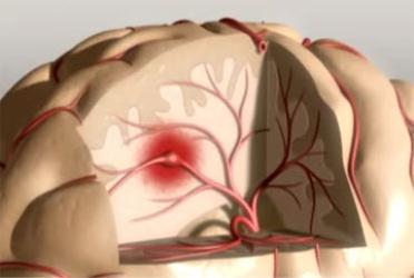 Разновидности инсульта, причины, симптомы, диагностика